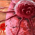 Kanker Bisa Disembuhkan dengan Cara Alami